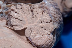 Close-up detail of a sagittal section of the cerebellum