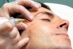 Close up detail of laser plasma pen removing facial moles on middle aged man.