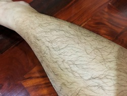 Close up hairy leg of Asian woman because androgenic effect in female who has high level of androgen hormone (Hyperandrogenism) call Hirsutism that is condition in woman develop excessive hair growth