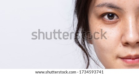 Close up half fresh face of Asian women is looking at camera on white banner background with copy space, Problem skin face, Freckle on face of Asian women,  ストックフォト ©