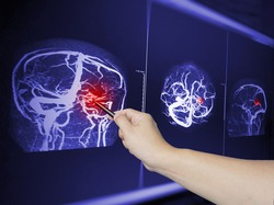 Close up Hand doctor point MRA brian scan image of a recent traumatic brain injury patient showing brain contusion and hemorrhage.Medical image concept.