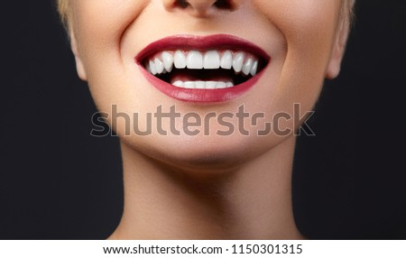 Close-up happy female smile with healthy white teeth, bright red gloss lips make-up. Cosmetology, dentistry and beauty care. Macro of woman's smiling mouth #1150301315