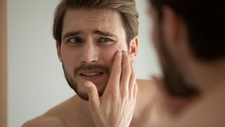 Close up head shot unhappy man looking in mirror, feeling stressed of sensitive skin or acne breakout, thinking of cosmetology treatment. Depressed young guy dissatisfied with skin condition.