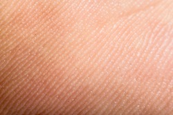 Close up human skin. Macro epidermis texture. Pores and folds of human skin. Dry skin.