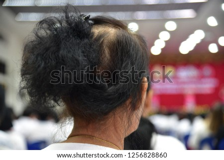 Close-up image of a woman with thin hair or thin hair