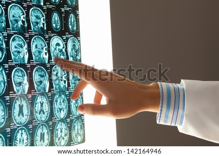 Close-up image of doctor's hand pointing at x-ray results