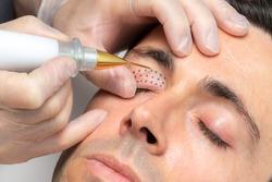 Close up macro detail of middle aged man having skin tightening on eyelids with laser plasma pen.