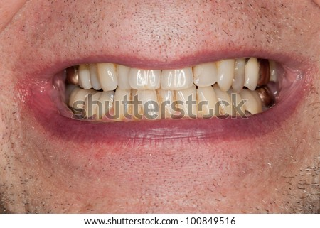 Close up macro shot of interior of mouth and fillings and crowns on teeth