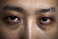 Close up male eyes. Insomnia in late night.