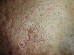 close-up man large pores oily skin surface with acne scars, dermatology problems