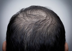 Close up man's head with hair loss, thinning hair or alopecia isolated on white background. Hair problem.