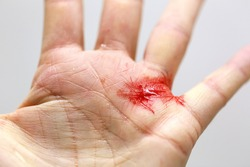 Close up of a cut hand with bleeding and tiny shards of glass.