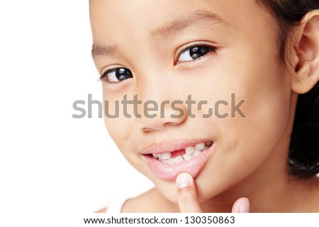 Close up of a cute girl showing a missing teeth.