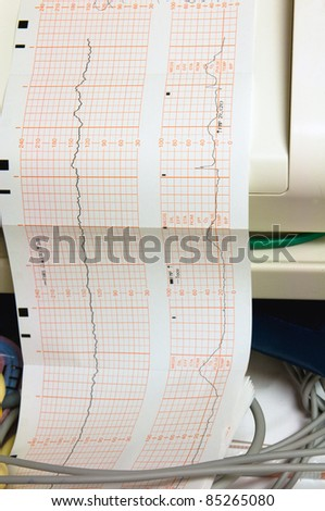 Close up of a fetal heart rate monitor printout