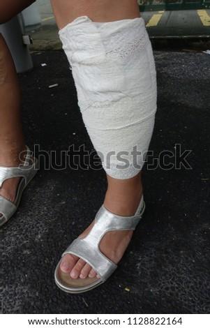 Plaster-leg-cast Images and Stock Photos - Avopix com