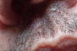 Close-up of a grown man's short-shaved beard. Skin damaged by shaving. Short bristles in soft focus at high magnification