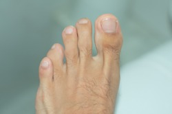 Close up of a left foot with a deformity.  Curly toe deformity in the fourth toe.
