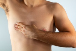 close up of a man's chest looking for signs of male breast cancer