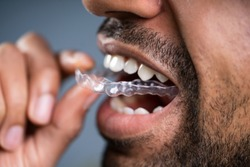 Close-up Of A Man's Hand Putting Transparent Aligner In Teeth