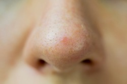 Close up of a nouse with clogged pores with blackheads