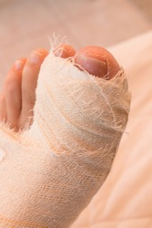 Close up of a Persons Bandaged up Broken Big Toe