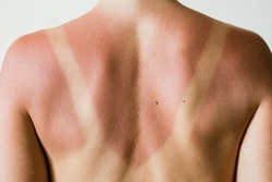 Close-up of a sunburn marks on a woman's back