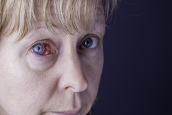 Close up of a woman's face showing a red bloodshot eye. Shot against a plain blue background providing copy space.