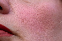 close up of ageing and flushed problem skin of mature woman