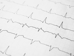 Close up of an electrocardiogram in paper form. ECG or EKG record paper. The heartbeat is shown on the graph. Medical and healthcare concept. Minimalism style template for medical blog. Soft focus