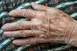 Close-up of an old woman's hand. the effect of age on the skin, old age. wrinkled skin and prominent veins. elderly woman hands. wrinkled hand