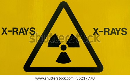 Close up of an x-ray warning sign