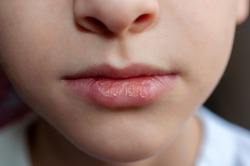 Close-up of baby dry chapped lips, lip care, soft focus