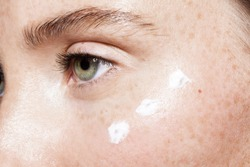 Close up of beautiful woman face with clean fresh skin and points of white moisturizing cream under eye. Concept of beauty cleanliness perfection and skincare