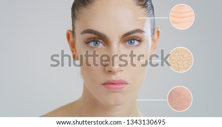 Close up of beautiful woman face with perfect skin and three macro zoom of the dry wrinkled with impurities skin before using the cream and soft and moisturized after.