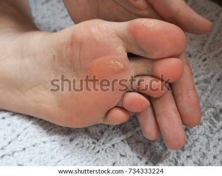 Close up of Calluses. Painful corn on foot. ストックフォト ©