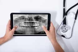 Close-up Of Doctor Holding Digital Tablet With Human Teeth X-ray And Stethoscope On White Background