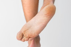 Close up of dry feet. Peeling and cracked foot. Fungal infection or athlete's foot, dry skin, dermatitis, eczema, psoriasis, sweaty feet or dehydration. Health care concept