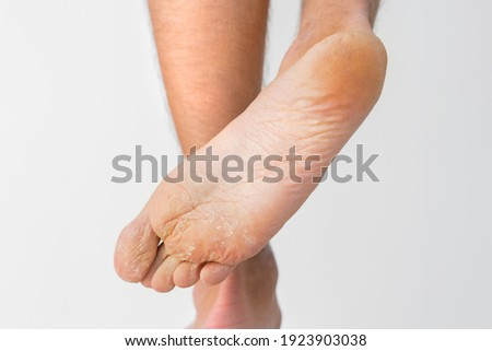 Close up of dry feet. Peeling and cracked foot. Fungal infection or athlete's foot, dry skin, dermatitis, eczema, psoriasis, sweaty feet or dehydration. Health care concept ストックフォト ©