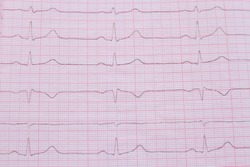 Close up of ECG cardiogram pulse graph on a paper. Medical examination cardiogram
