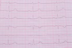 Close up of ECG cardiogram pulse graph on a paper. Medical examination cardiogram