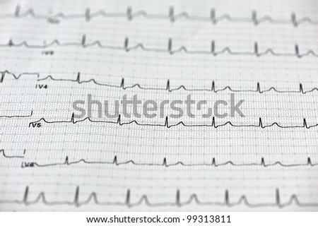 Close up of ECG (electrocardiogram)  paper - stock photo