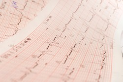 Close up of ECG, electrocardiogram. The work of a healthy heart on paper.