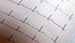 Close up of ECG paper graph report Background