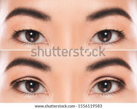 Close-up of female eyes after East Asian blepharoplasty or double eyelid surgery Stock photo ©