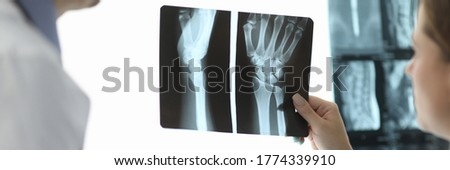 Close-up of female hand holding skiagram. Doctor talking about diagnosis of injured patient. Surgeon writing information. Healthcare and traumatology concept Stock photo ©