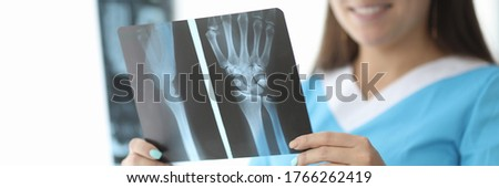Close-up of female hands holding wrist skiagram. Smiling doctor traumatologist examining shadowgraph. Therapist making diagnosis to patient. Medicine and healthcare concept Stock photo ©