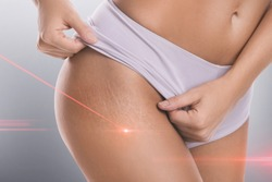 Close-up of female hips with a stretch marks during laser removal session treatment