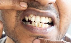 Close-up of irregular teeth shown by an Indian man