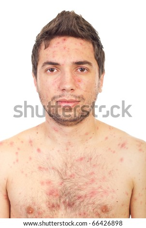 Close up of  man face with chickenpox isolated on white background