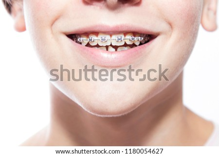 close-up of mouth with dental corrector or braces #1180054627
